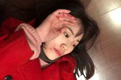 被打VS戏精?马蓉家暴案最新反转:警察到了她还躺地上摆拍!
