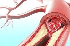 微课预告 | 名医指路:得了心血管病,如何平稳过冬?