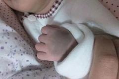 宝宝胎记有好有坏:这几种家长要警惕,轻则毁容、重则致癌!