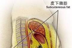 内脏脂肪的危害要及早重视