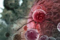 宣武科普 | 穿刺活检会不会让癌症扩散?
