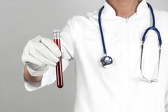 尿酸一天比一天高,这些错让你的尿酸直逼红线,离痛风一步之遥