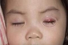 男童右眼皮上面长了个小包,医生的话吓了妈妈一跳!