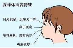 宝宝打呼噜别大意,它可能是疾病的征兆
