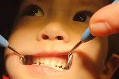 学牙医的我,为何从不给自己的孩子看牙?