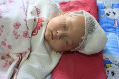"""4个月大的宝宝""""脑积液"""",医生的话让孩子的父亲懊悔不已!"""