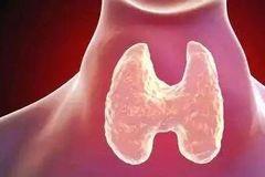 体检发现甲状腺结节是不是癌症?该不该手术?这篇科普全说透了!
