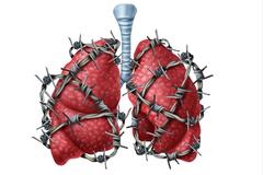 肺不好的人,手上往往都会出现这4个特征,希望你一个都别占!