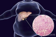 """脂肪肝有一张调理清单:落实4件事,肝脏会""""瘦下来"""""""