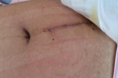 剖腹产的女性为何有的是横切,有的却是竖切?原来其中有这些区别