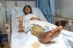 南宁8人被毒蛇咬伤,还有人进了ICU!竹叶青、眼镜蛇、五步蛇都有……