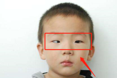 """5岁男童老玩这类玩具,导致黑眼珠逐渐""""消失"""",家长要注意"""