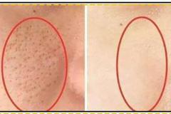 毛孔粗大怎么办?了解成因掌握毛孔粗大的护肤技巧