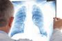 宣武科普 | 当心!肺里结疤可能比癌症更可怕