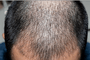 搜狐科学 | 印度商人花5万植发12小时后死亡,植发?#24515;?#20123;风险?