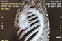 患者至上 | 北京天坛医院完成首例复杂主动脉大血管手术,实现术中零输血