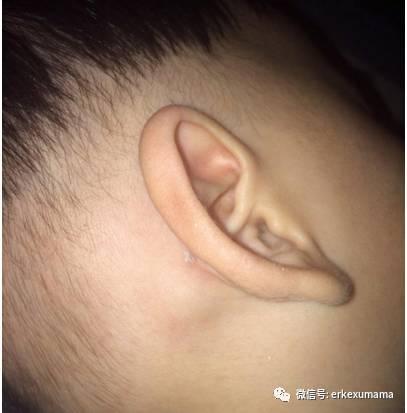 宝宝耳朵后面长的疙瘩是什么
