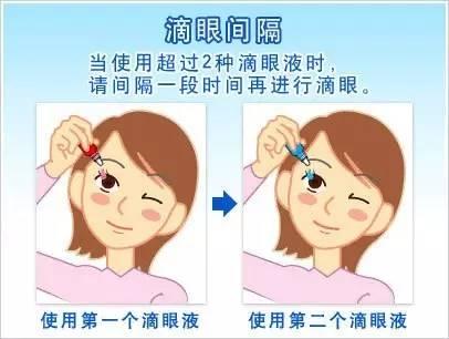滴眼药水的方法?图片