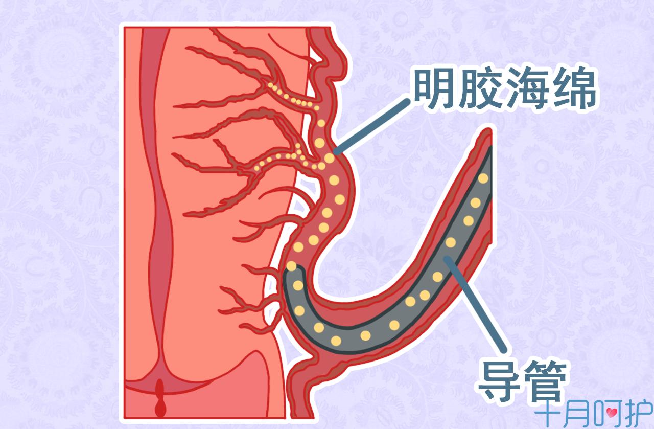 腋臭手术图片
