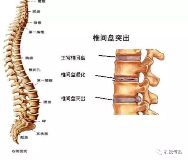中医什么原理治腰椎间盘突出_腰椎间盘突出的原理