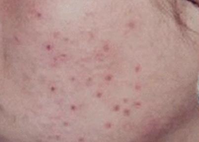 如何去掉红色痘印_痘印_痘坑与痘印的区别图_黑色痘印_红色痘印 - www.qiqidown.com