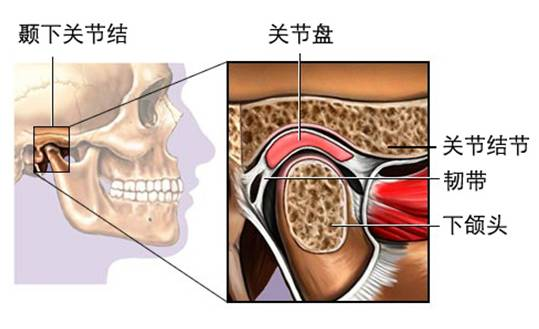 如咬合干扰,牙齿过度磨损,磨牙缺失过多,不良修复体,颌间距离过低等.