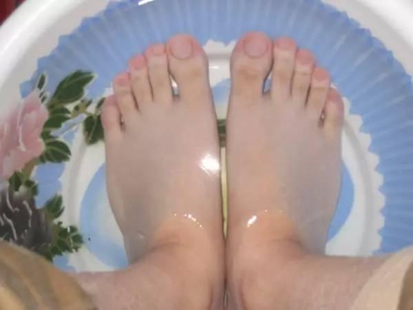 夏季护好脚,冬季生病少,5大护脚方法学起来!