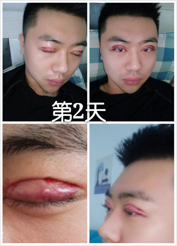韩式三点双眼皮图片,第三次做双眼皮,全切 去皮,做的平扇,老司机了