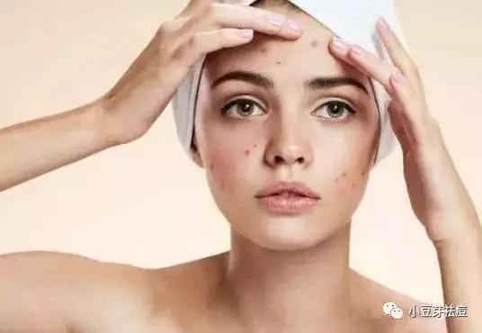 为什么脸上痘痘喜欢在夏天爆发