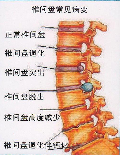 腰椎间盘突出症状讲解 古方源知识课堂