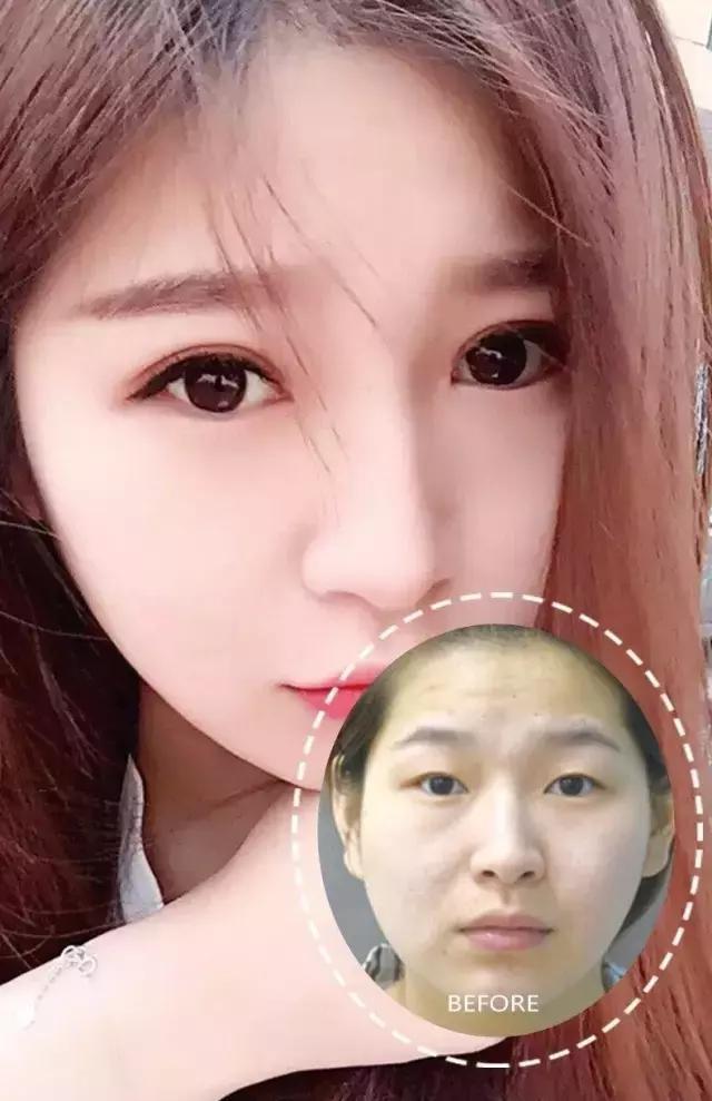 韩国模特花百万整形,只为变成baby.
