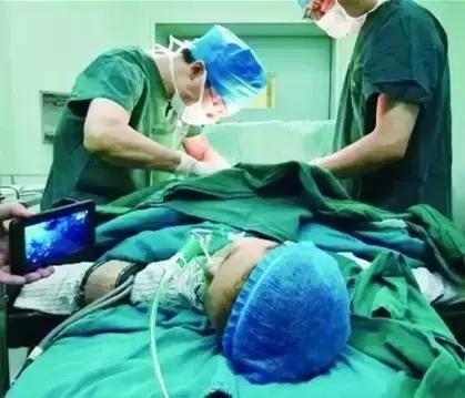 宝宝包皮手术后护理