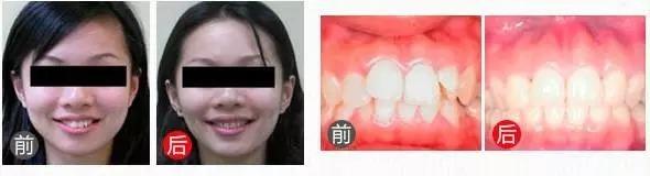 重庆口腔医院牙齿矫正真人案例