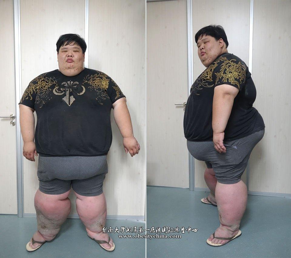 世界巨胖_生怕活不到30岁的500斤巨胖加,减重手术完美收工