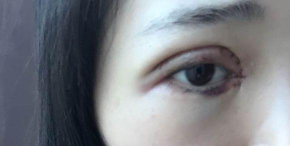 微创全切双眼皮 开眼角,第48天,侧面看起来不肿