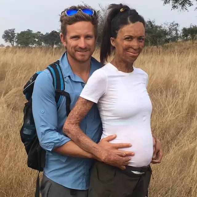 """怀个孕惊动全球?这个全身65%烧伤毁容的""""丑""""姑娘,却拥有了世界上最帅的"""