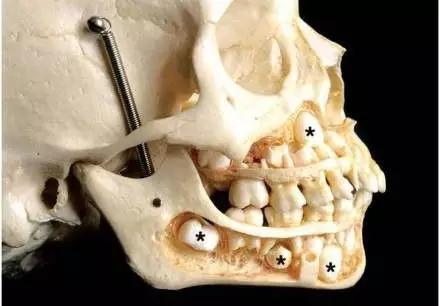 乳牙更不同!