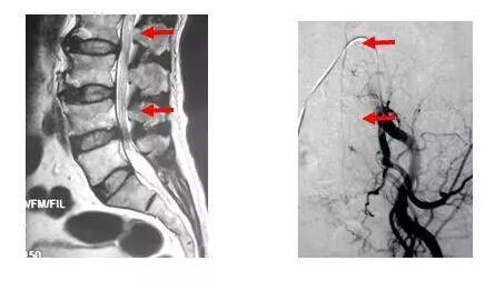 瘺/i��y�N�����b�����_我们认为,对于供应动脉迂曲,导管不能到达瘘口(往往是i型pmavf),特别