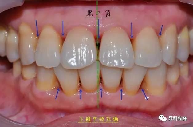 由于结石刺激牙龈退缩,前牙区黑三角很明显.