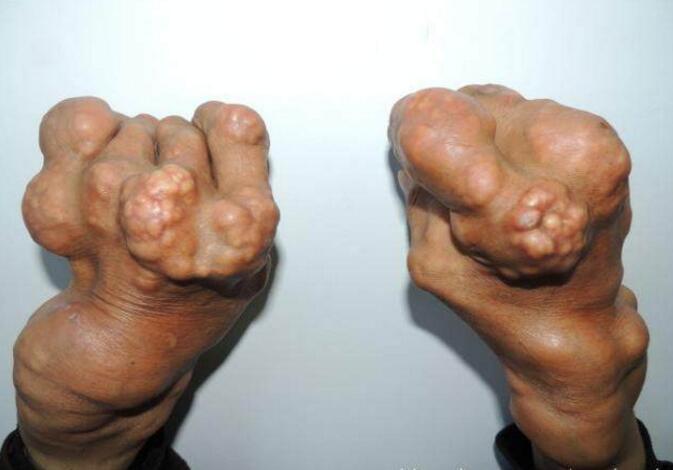 人体�9/�_这些尿酸结晶会吸附在人体软关节,形成痛风石,且随着病情加重越变越大