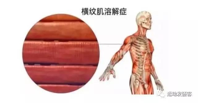 年轻小伙hv168鸿运国际,www.hv168.com|鸿运国际官网欢迎您房锻炼竟被下病危通知,为什么肌肉溶解这么恐怖?