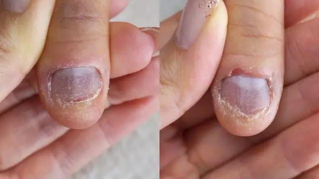 3、甲面不平整,甲面断裂   这种人可能是因为生病或者意外导致的甲面问题   二、不喜欢做长指甲的,可以