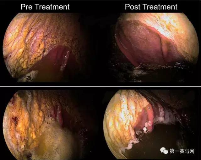▲胃镜下:左侧图片显示非腺体区的纤维化和出血性胃溃疡;右侧图片图片