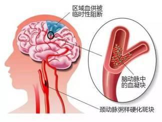 小心!三分之一的中国人脖子里都有这个东西,不会预防或引发脑梗中风!