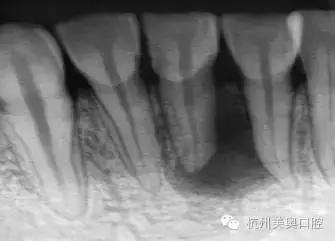 根管治疗后牙齿终生