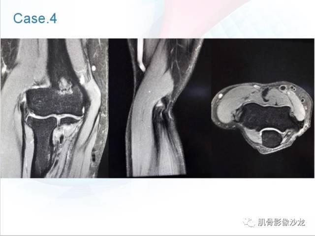 讲完网球肘,我们接着讲另一组肱骨止点v肱骨,肌腱内上髁炎(高尔夫球肘)骑马与砍杀战团兵力修改图片