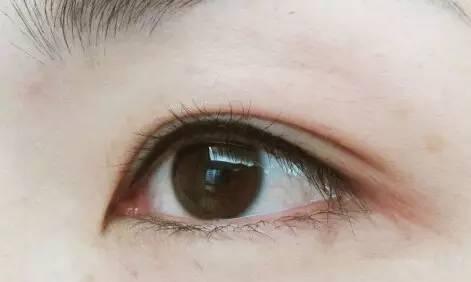 美瞳线会变成永久的吗图片