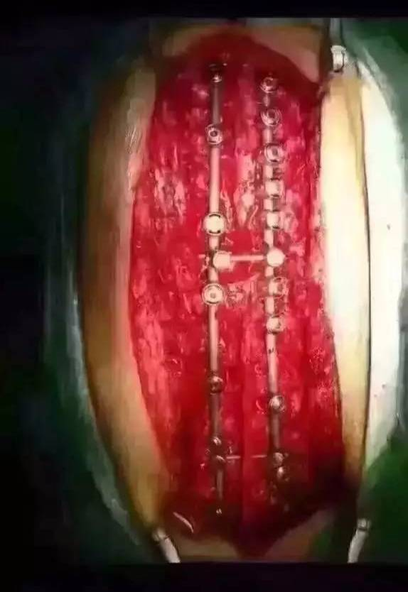 小兒脊柱側彎 要做手術 國內哪家醫院最好?哪位醫生是圖片