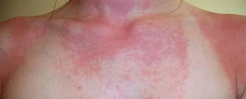 香香的护肤品、精油谁不爱?可其中暗藏着肌肤健康杀手!