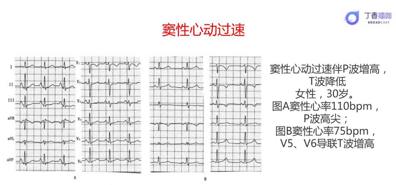 窦性心律不齐 早搏_如何读懂一份正常范围的心电图